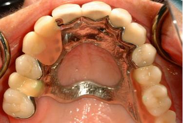 Chrome-Partial-Dentures