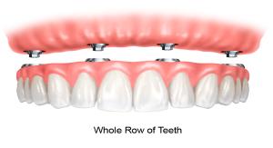 dental-implants3
