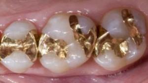 Gold-Inlay